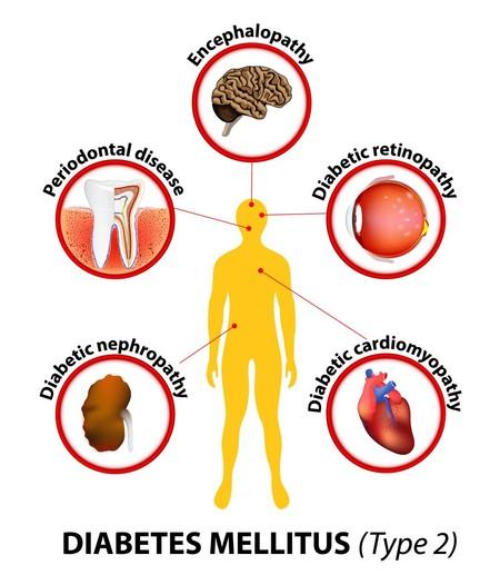 info diabetes