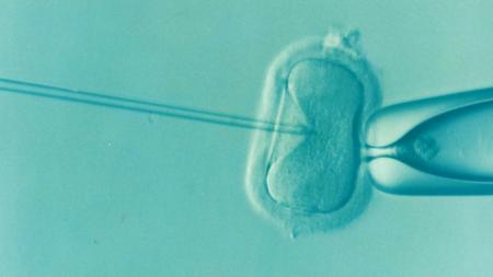 Icsi Intracytoplasmic Sperm Injection