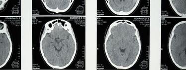 Esta nueva herramienta de inteligencia artificial podría diagnosticar la demencia a partir de un solo escáner cerebral