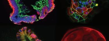 Estos robots están cultivando órganos microscópicos para encontrar nuevos tratamientos contra enfermedades imposibles