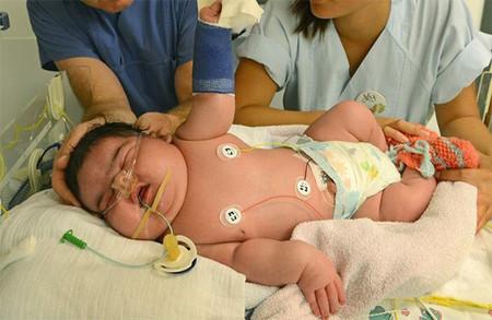 Nace mediante parto vaginal el bebé más grande de la historia de Alemania