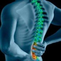 La técnica de Alexander ayuda a combatir el dolor de espalda