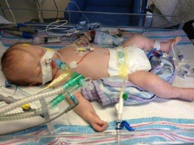 Los padres decidieron desconectar a su bebé enfermo y sucedió lo inexplicable: luchó para vivir