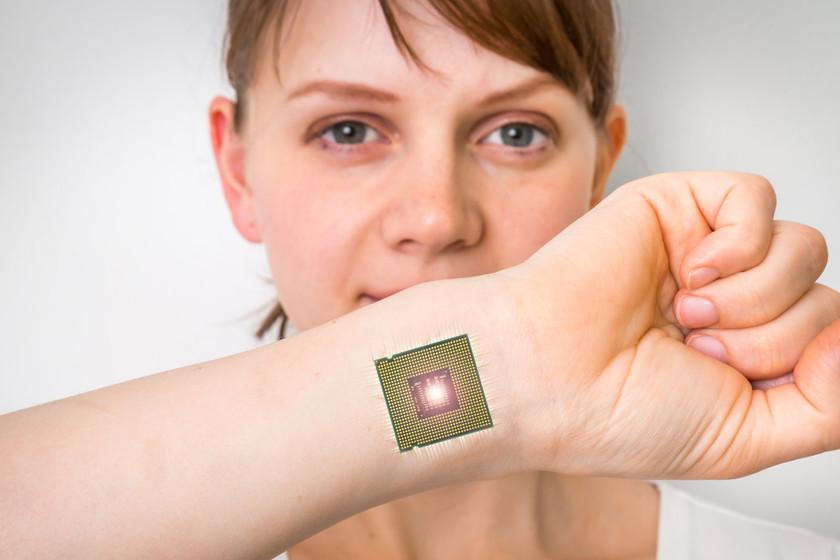 Chip Implantat