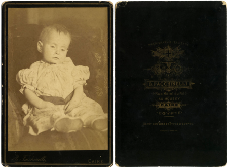 Post Mortem Infant By Facchinelli C1890