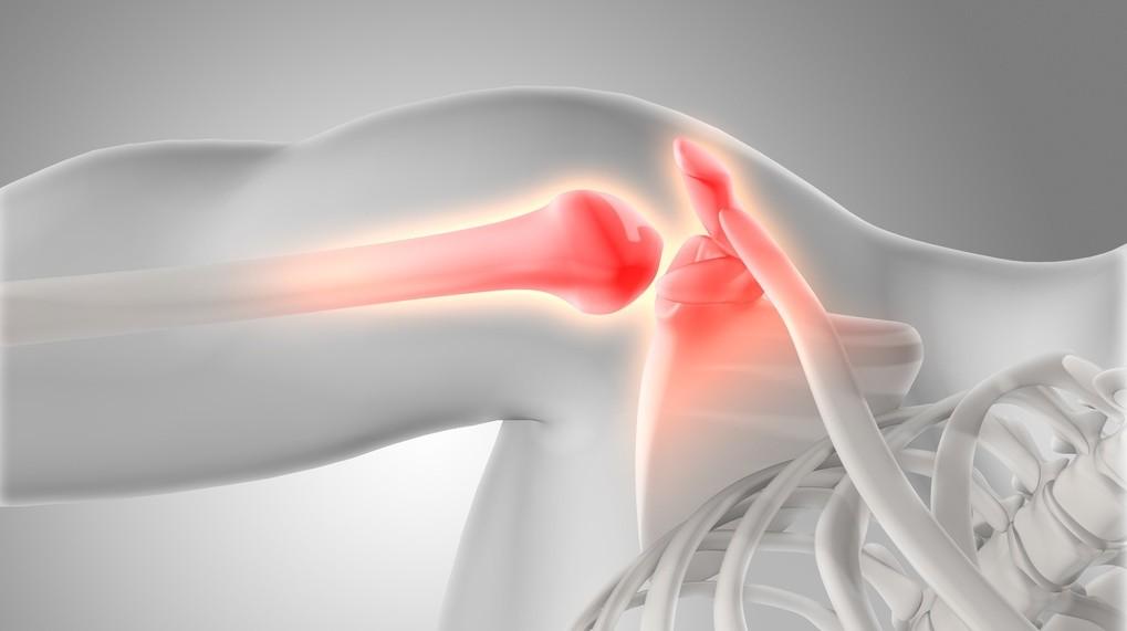 como curar el dolor muscular de un brazo