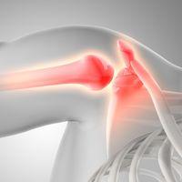 Las lesiones más comunes en hombros y brazos y cómo podemos evitarlas