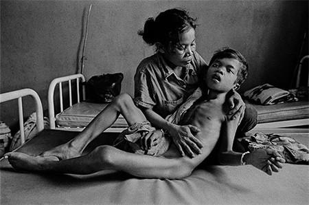 La tuberculosis, vista por James Nachtwey