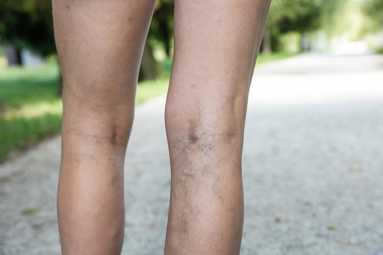 Causa el venas varicosas ciclismo