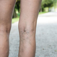 Las varices y el riesgo de trombos: lo que necesitas saber para prevenirlas