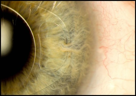 Intraocular Lens Iris Clip