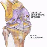 Efecto de los suplementos dietarios en la artrosis de rodilla