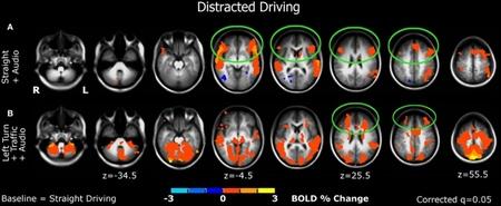 fMRI study 03 Estudio de la actividad cerebral durante la conducción