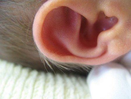 El bebé tiene orejas de soplillo