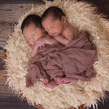 La preciosa imagen de dos gemelas idénticas que nacieron abrazadas, exactamente al mismo tiempo