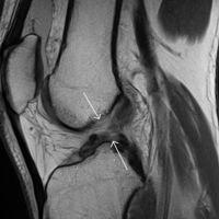 Un ligamento completamente artificial es la esperanza para las lesiones del cruzado anterior