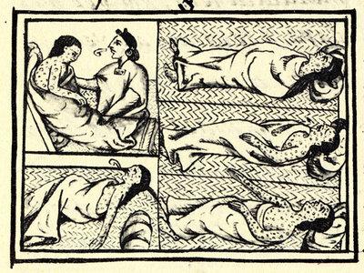 De cómo vencimos a la viruela