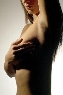 Estrías (II): tratamientos