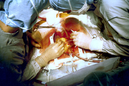 Coronary Artery Bypass Surgery Image 657b Ph