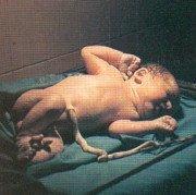 El cuidado del cordón umbilical