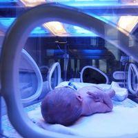 La ictericia en recién nacidos podría ser un sistema de defensa evolutivo contra la muerte por sepsis