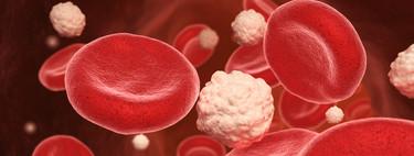 Dislipemia: causas, síntomas y tratamiento