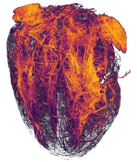 20 Heart Mip