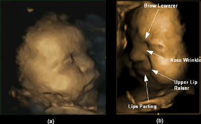 Los bebés podrían ensayar dentro del útero cómo padecer y cómo hacerlo saber