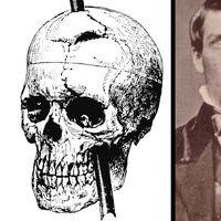 Este es el objeto más grande extraído de un cráneo humano