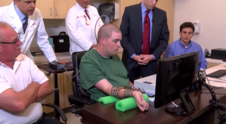 Neurobridge permite mover los dedos y las manos a una persona tetrapléjica