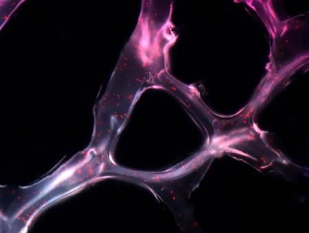 Microrna Scaffold Cancer Therapy