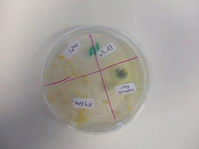 Las parejas comparten incluso sus bacterias