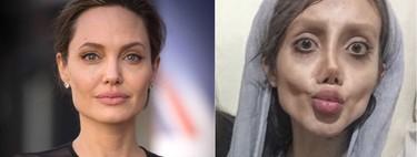 """La historia de la chica que """"se ha operado"""" para ser Angelina Jolie es menos sórdida de lo que parece"""