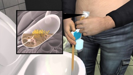 """Este dispositivo """"aspira"""" la comida directamente del estomago para combatir la obesidad"""