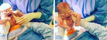 Las increíbles fotos de una cesárea en las que la madre saca a su cuarto bebé con sus propias manos