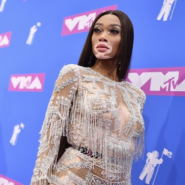 MTV VMA 2018: Winnie Harlow se pasa de brillos y harapos, pareciendo una momia en la red carpet