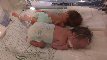gemelas prematuras