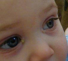 Atención a los ojos del bebé