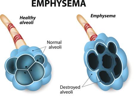 Enfisema