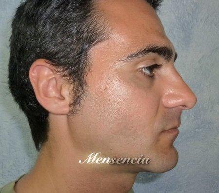 Truco de maquillaje para hombres con cicatrices en el rostro: 3 pasos, 3 fotos