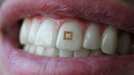 Con este diminuto sensor montado en el diente buscan saber qué es lo que comemos