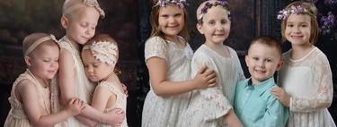 Cuatro años después, tres niñas y un niño recrean una foto viral que representa la lucha contra el cáncer