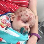 Una madre comparte la increíble reacción que la varicela le ha provocado a su bebé para concienciar acerca de la vacuna