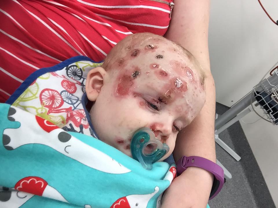 chicken pox in infant #10