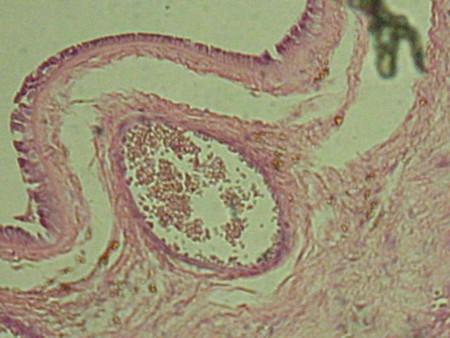 Tejido de una Placenta