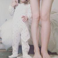 Una extraña condición dejó su pierna izquierda al doble de su tamaño tras el embarazo: ¿qué es un linfedema?