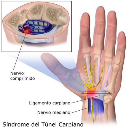 tunel-carpiano-enfermedad-profesional