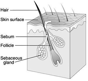 El rebrote de acné después del verano (I): os explicamos el porqué
