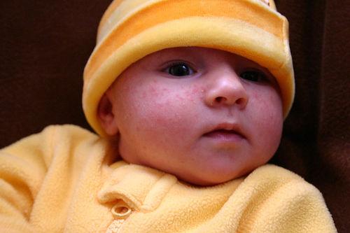 Acné en los bebés recién nacidos # Wasbak Zit Los_081955