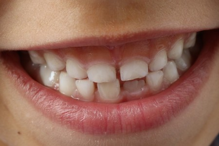 dientes de leche y celulas madre